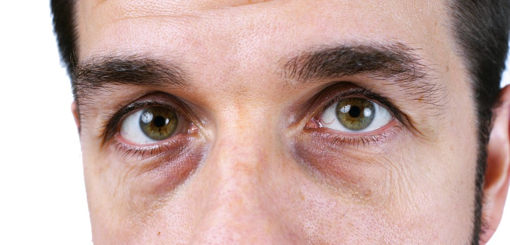 Poches yeux efficace anti